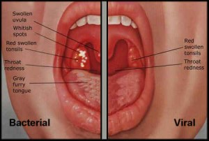 Strep and Sore Throat Differences