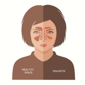 sinusitis disease