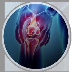 Sports Medicine Injuries