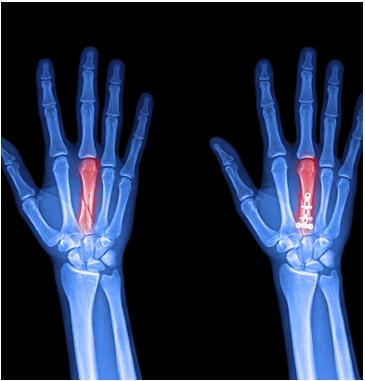 Hand pain - Wrist Pain - Spectrum Orthopaedics