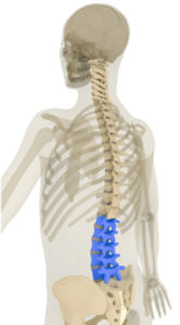 Spine Surgery - Orthopedic - Spine - Neck surgery - Spectrum Orthopaedics - Dr. Stefanko - Herniated Disc - Myelopathy - Degenerative Disease - Radiculopathy - Spinal Stenosis