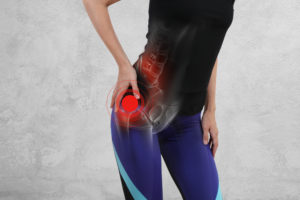 Woman holding hip due to hip pain