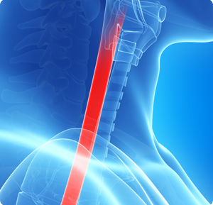 Esophageal Strictures - North Shore Gastroenterology