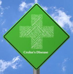 Crohn's disease sign