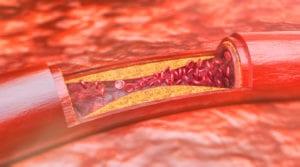 Arterial Disease