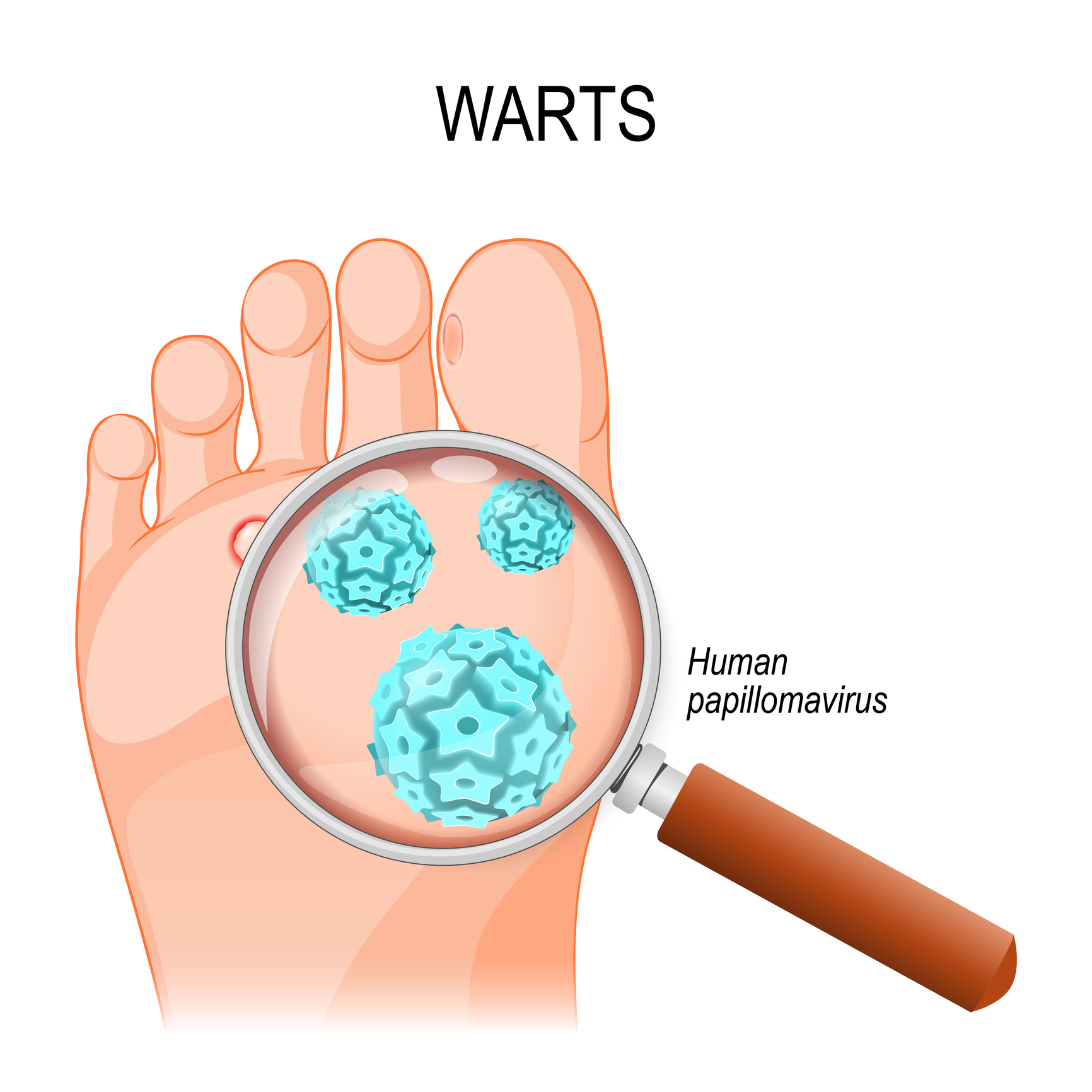 wart foot symptoms