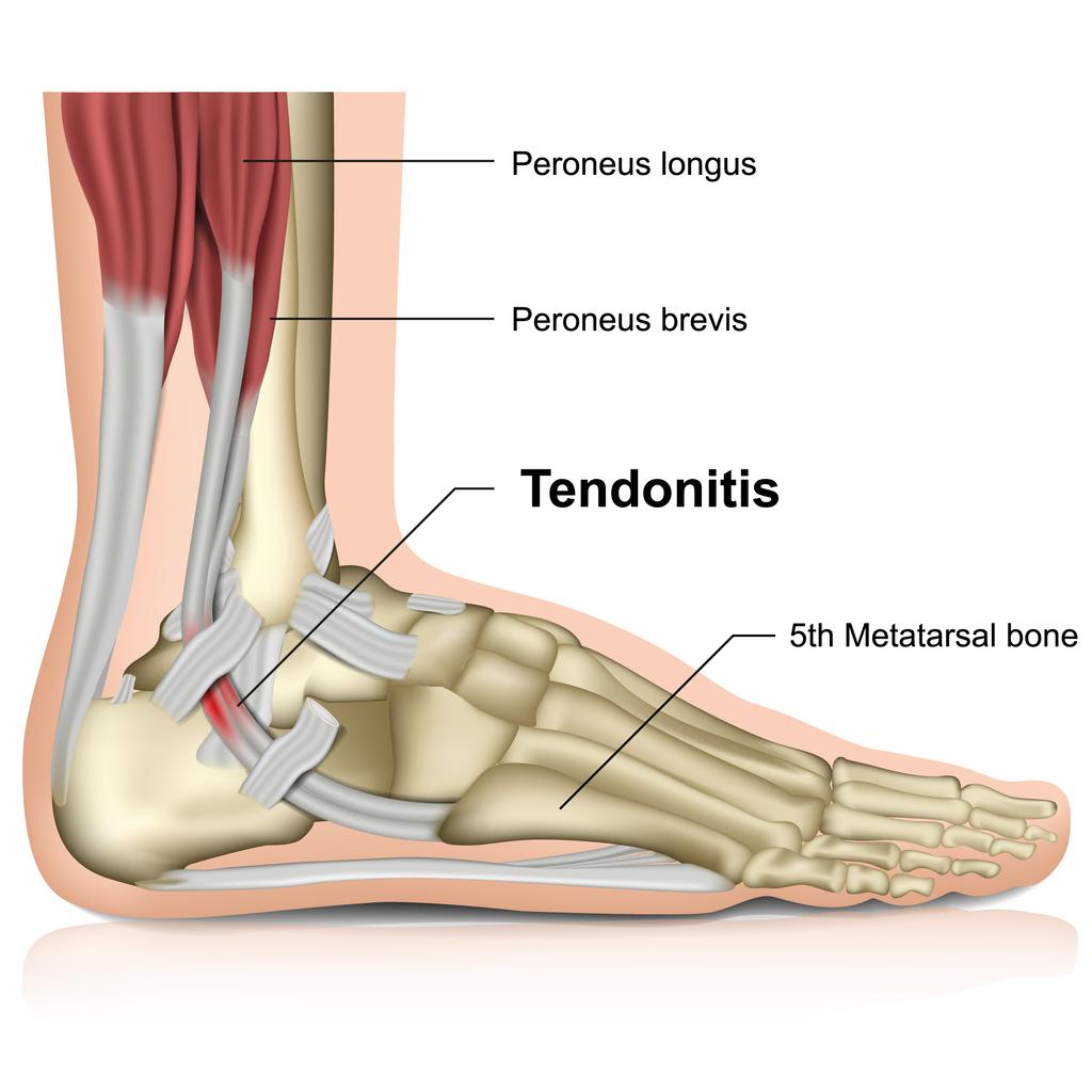 What Is Peroneal Tendonitis? | Cincinnati Foot & Ankle Care