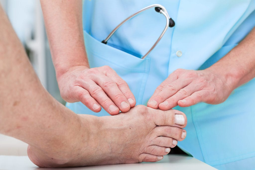Treatments for Bunions