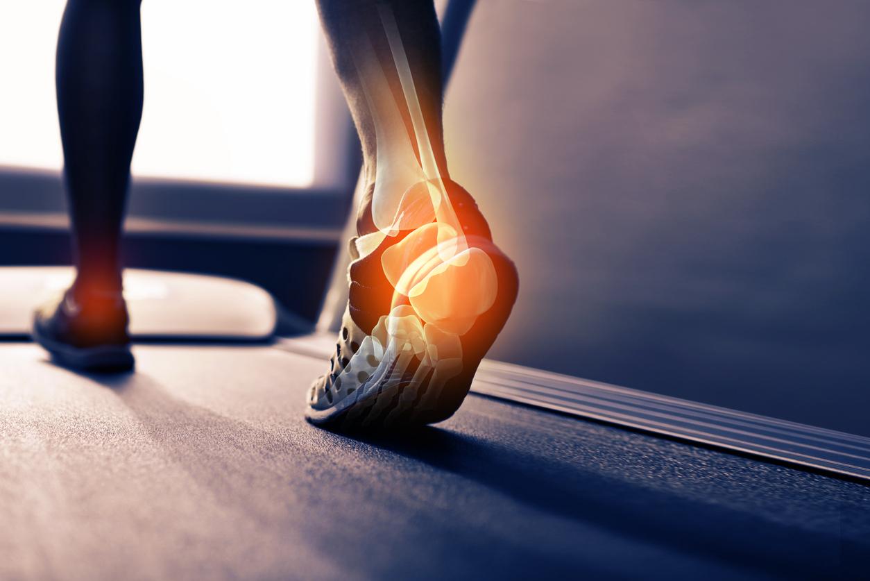 What is posterior tibial tendonitis | Cincinnati Foot & Ankle Care