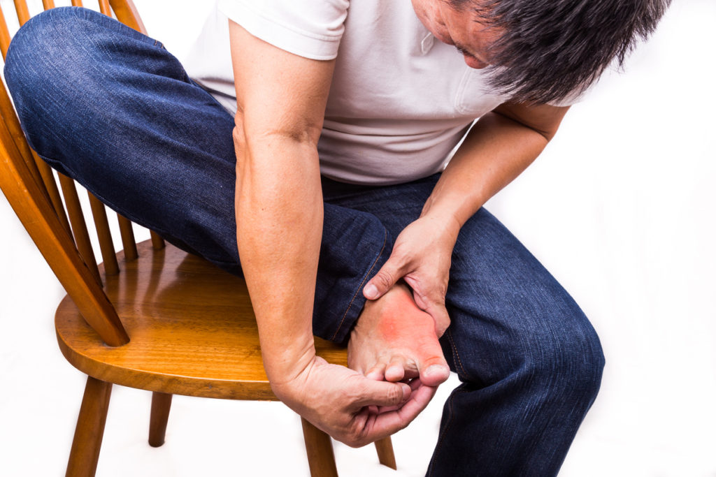 Man with bunion pain