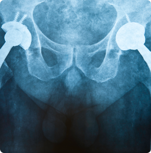 Hip Replacement - The Bone & Joint Center - ND