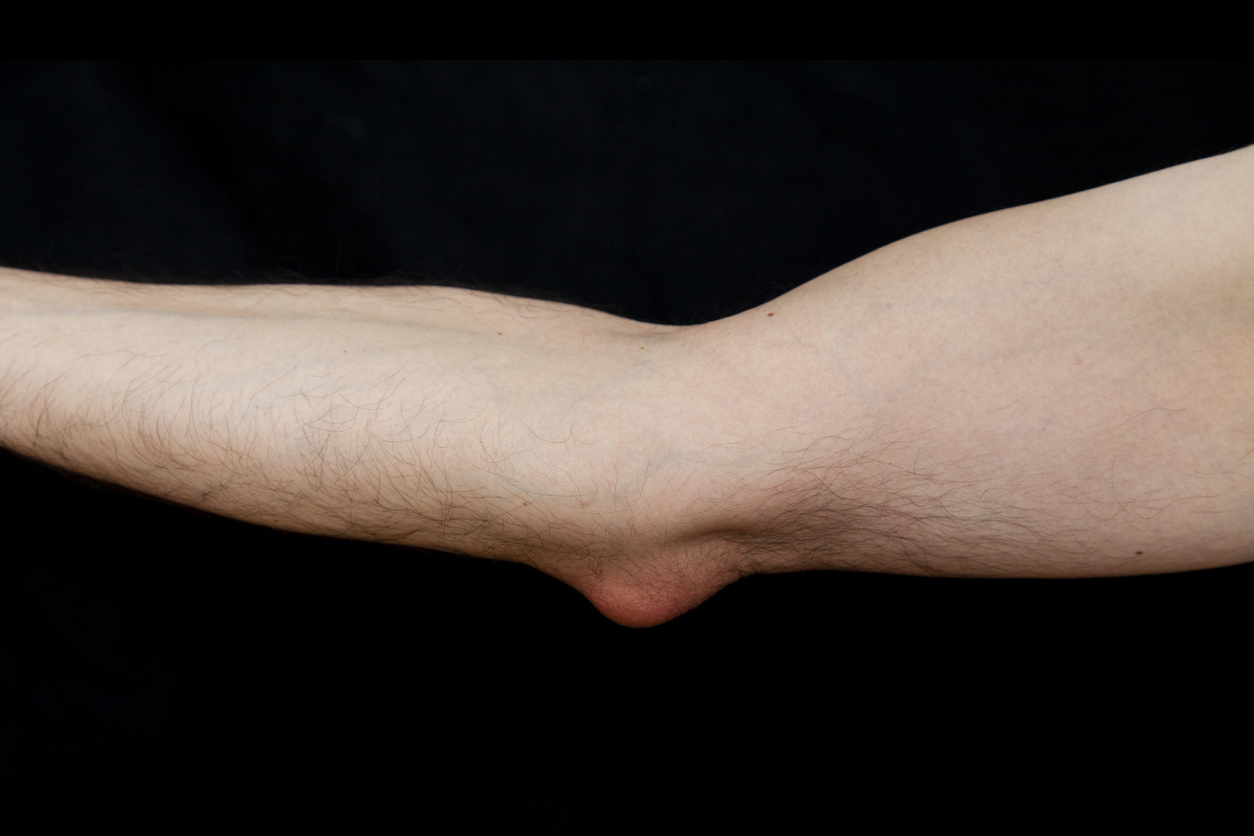 Buy Bursitis Treatment Online in Hungary at Best Prices