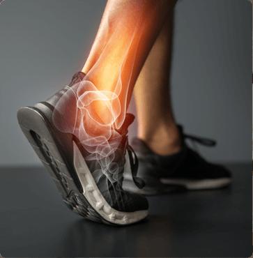 Meniscus Tear - Sports Physicians Orthopedics and Rehabilitation of Texas