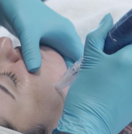 Microneedling - Atlantic Derm - Dermatologist Delray Beach, Florida
