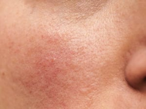 rosacea and redness