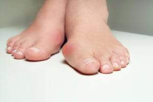 Bunion - Bunion treatment
