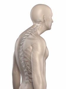 Kyphosis - Scoliosis