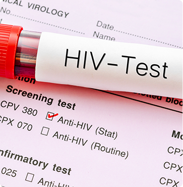 HIV Testing - East Arkansas Family Health Center - Arkansas