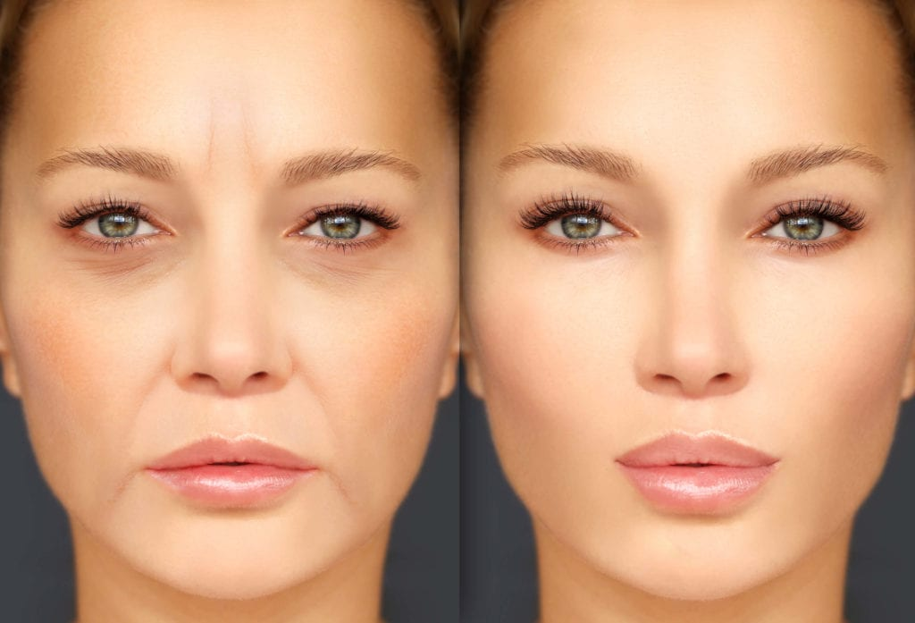 Botox - Rejuvenation Wellness & Medispa