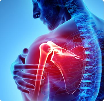 Shoulder Pain - Powell Orthopedics and Sports Medicine - Birmingham AL