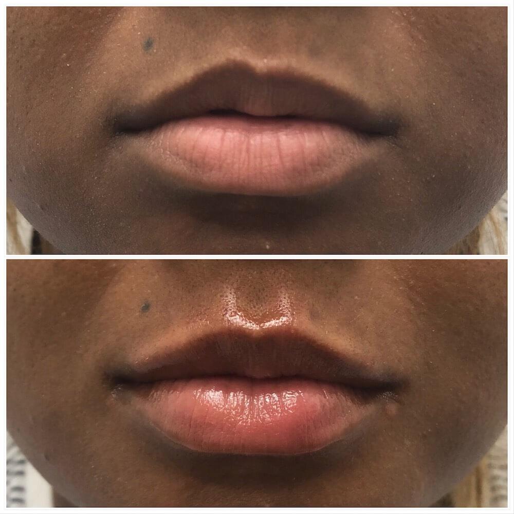 Lip-Filler-2