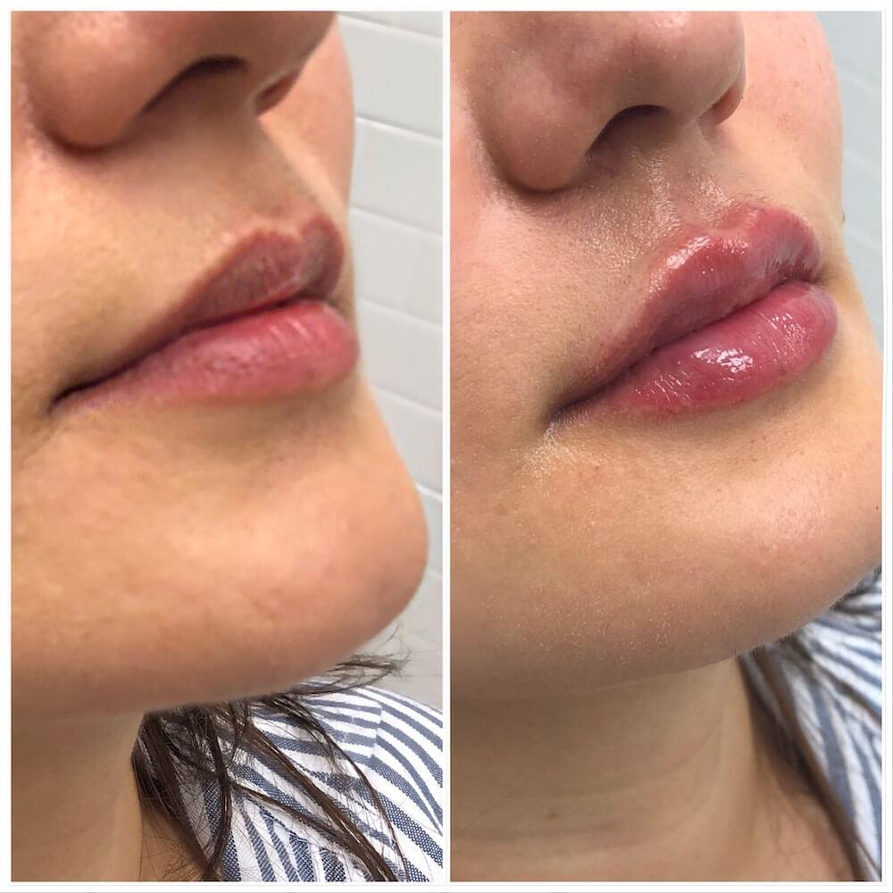 Lip-Filler-3