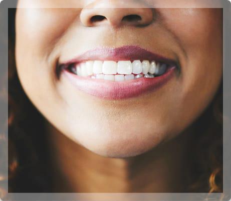 Cosmetic Dentistry - My Pompano Dentist - Pompano Beach FL