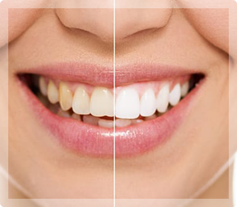 Teeth Whitening - My Pompano Dentist - Pompano Beach FL