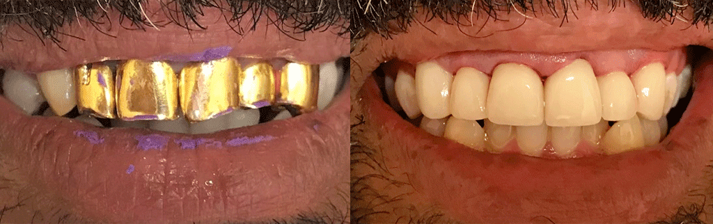 Model of New Teeth