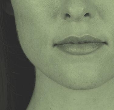Beautiful Image Facial Sculpting