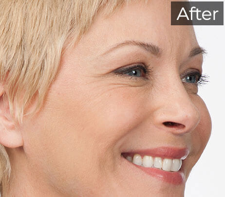 Botox Injections - botox - Botox Cosmetic - Family Weight & Wellness Clinic and Medi-Spa