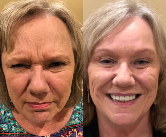Botox_Before-After_40-65_year_old_woman