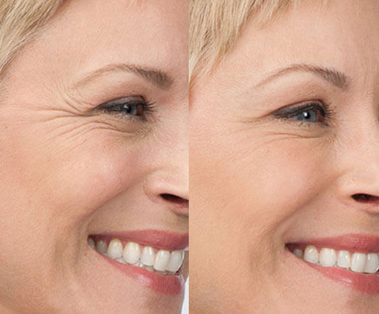 Botox Injections | Botox Cosmetic Treatments in Spring, TX