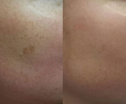 Chemical-Peels-before-after-1