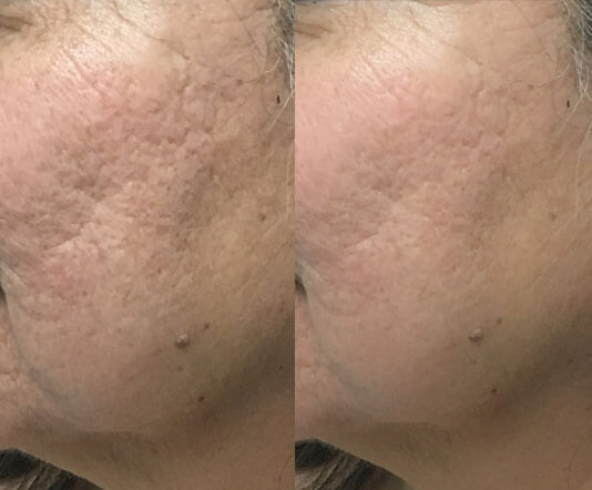 Chemical-Peels-before-after-2