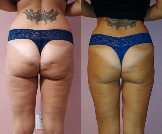 Shape-before-after-3