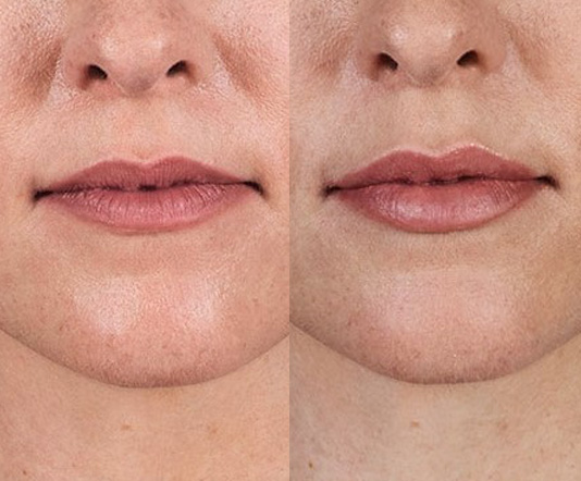 Juvederm-Volbella-before-after-11