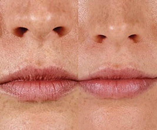 Juvederm Injections in Spring, Texas | Lip Fillers | Family