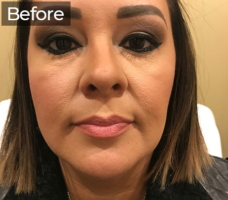 Juvederm Injections Spring Texas - Lip Fillers - Family Weight & Wellness Clinic and Medi Spa - Lip Fillers near me - lip fillers spring tx