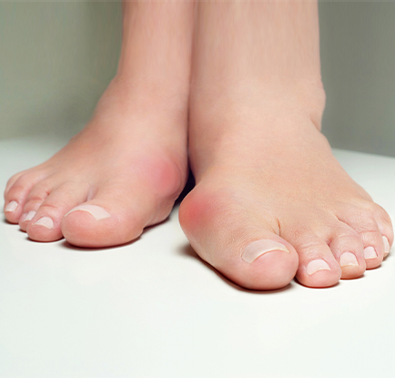 bunion - bunion surgery - bunion treatment - bunion pain - Podiatrist San Antonio, TX - foot doctor - The Podiatry Group of South Texas