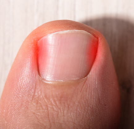 Ingrown Toenails - ingrown toenail removal - ingrown toenail treatment - podiatrists - The Podiatry Group of South Texas