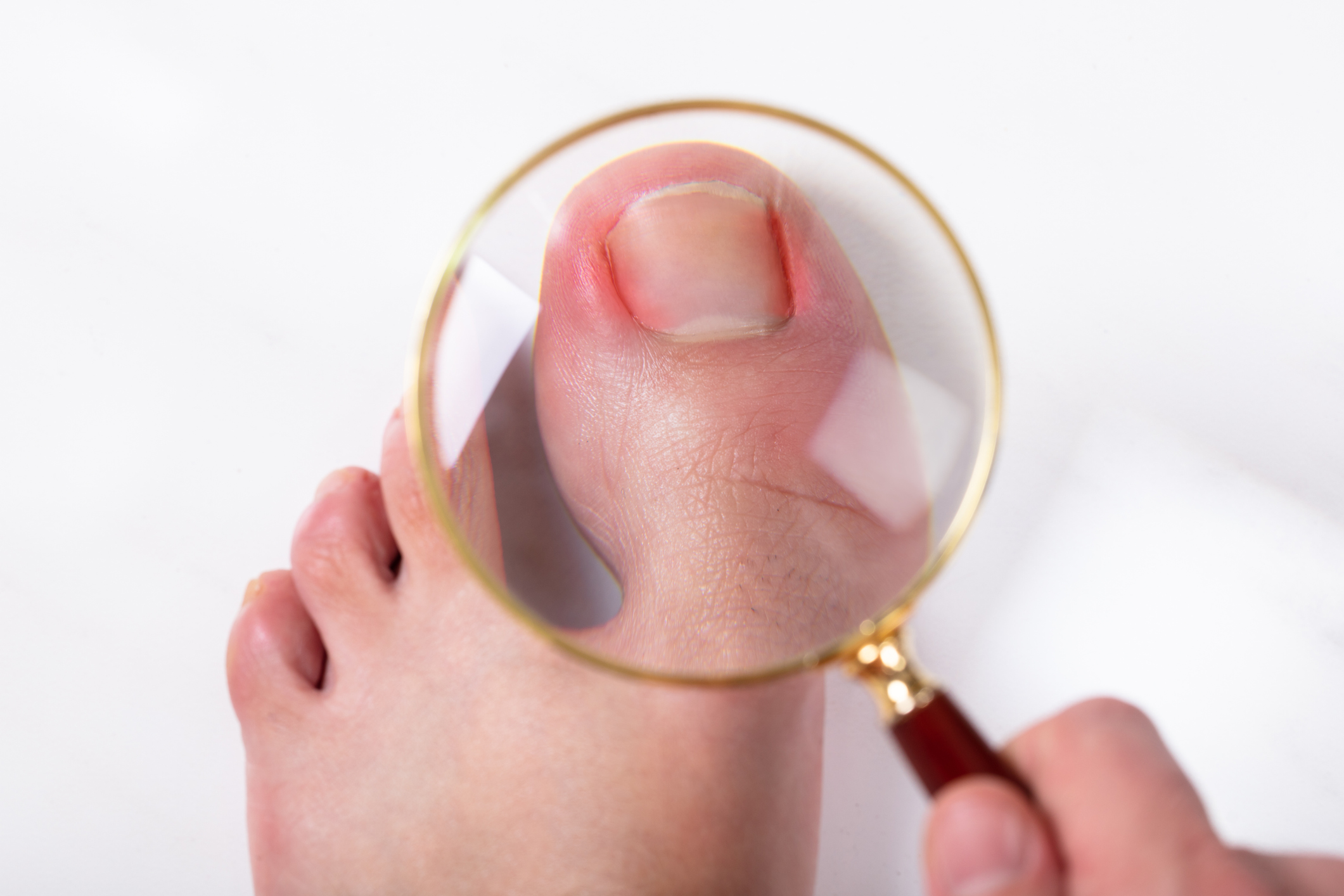 How To Treat Ingrown Toenails In Children The Podiatry
