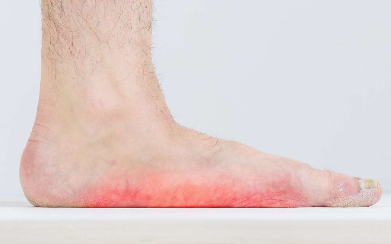 Are You Born with Flat Feet, or is it a