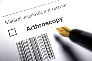 Arthroscopic Foot Surgery