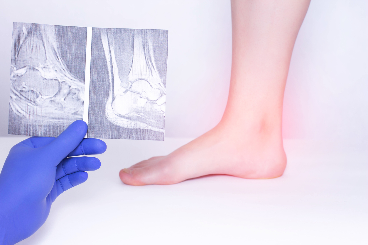 What To Do If You Have Weak Ankles The Podiatry Group Of South Texas
