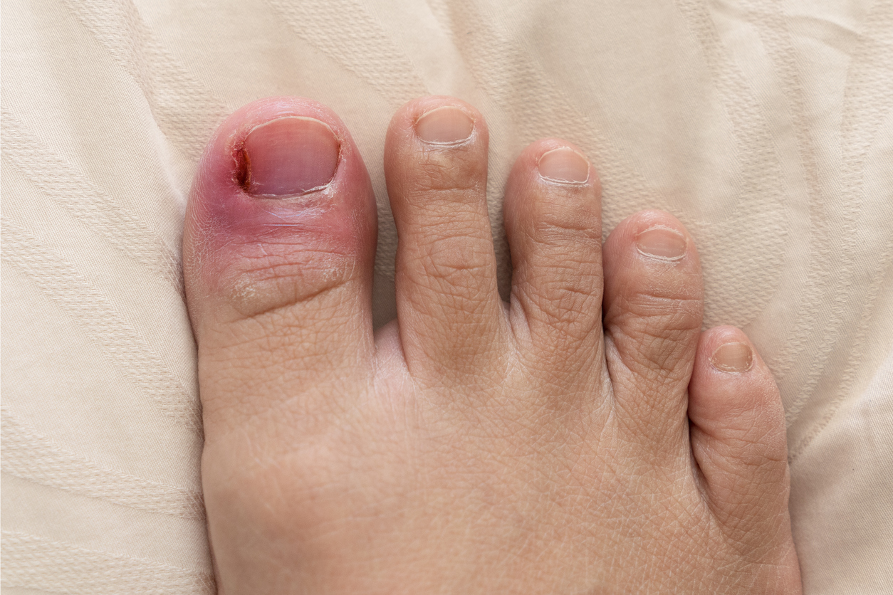 Still surgery toe numb toenail after ingrown Toe nail