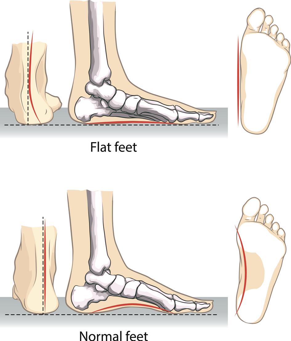 Treatments for Flat Feet   The Podiatry