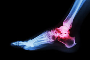 An illustration of a x-ray of a person's foot. Their ankle injury is highlighted pink.