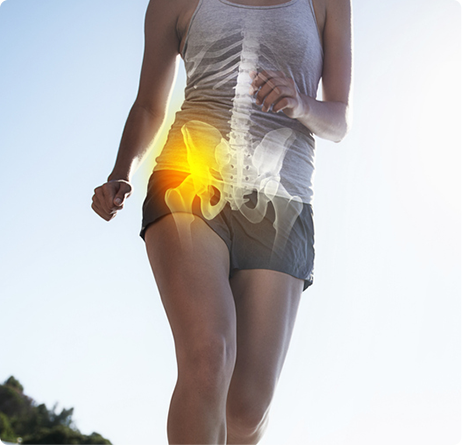 Hip Arthritis - Hip Arthritis Treatment - Hip Surgery West Bloomfield, MI