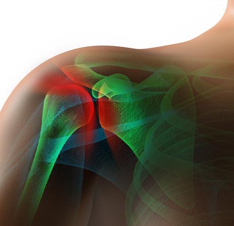 Rotator Cuff - Shoulder Pain - Shoulder Surgery West Bloomfield, MI
